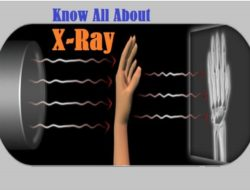 X-Ray Radiography – Types, How it Works, Applications and Advantages